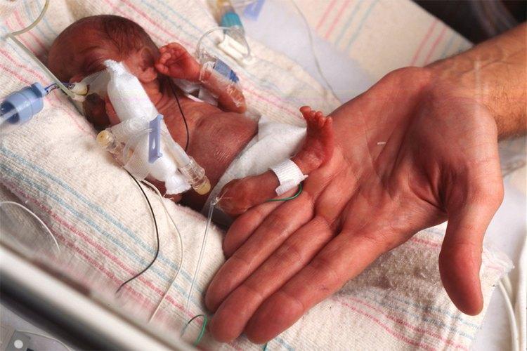 Erken Doğum Sorunu ve Tedavileri
