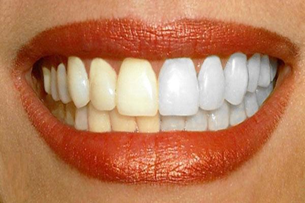 Dişlerde Tartar