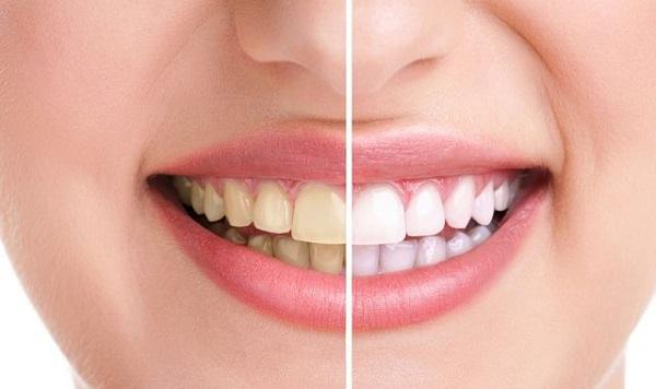 sarı dişleri nasıl beyazlatırız