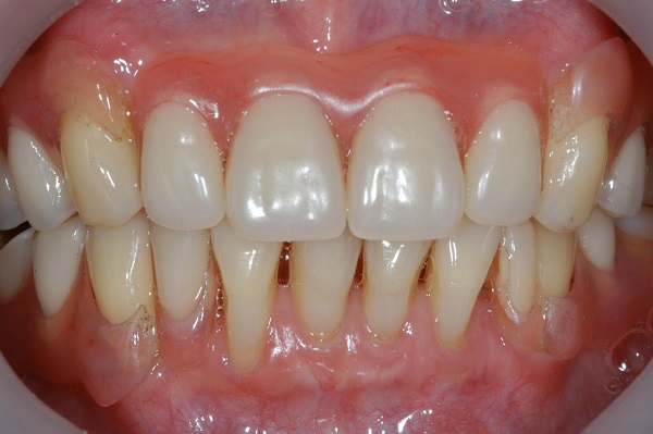 diş eti çekilmesi